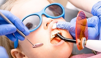 A young child wearing sunglasses while having dental work performed