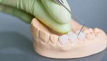 Plastic model of teeth with dental bridge