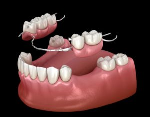 partial denture replacing several missing teeth at once